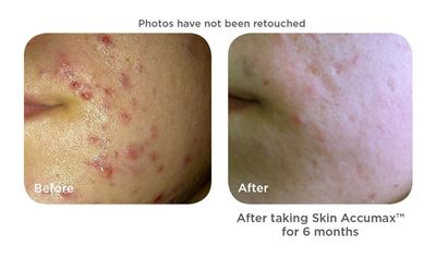 skin accumax before after