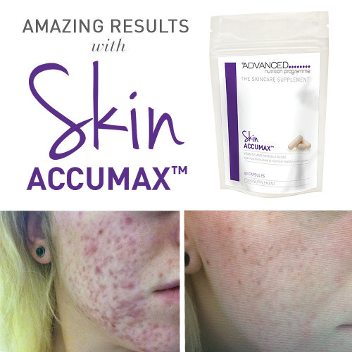 Skin Accumax Nutrition Guide